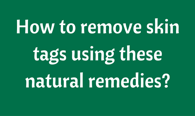 How to remove skin tags naturally?
