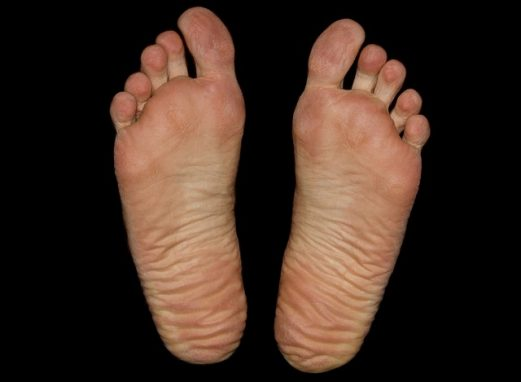 How to remove dead skin from your feet