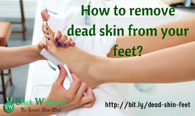 How to remove dead skin from your feet?