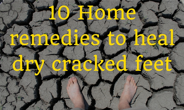 Home remedies to heal dry cracked feet
