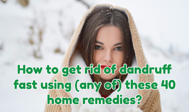 40 Home remedies to get rid of dandruff fast!