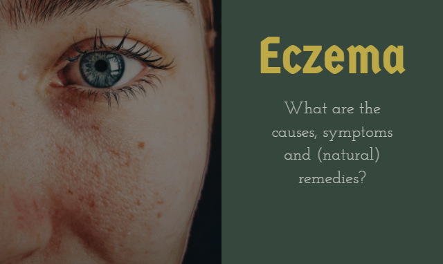 Eczema: Causes, symptoms and natural remedies
