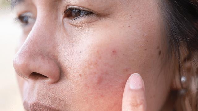 Skin issues